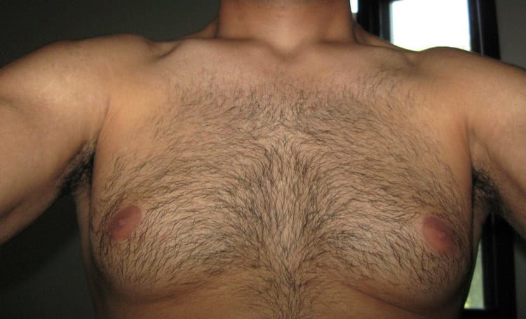 Uneven Chest Hair Is Totally Normal