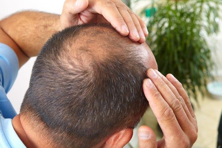 Can You Use Beard Oil For Hair Growth?